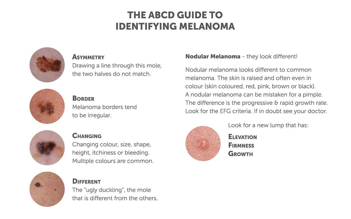 melanoma symptoms tendernessco