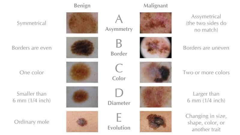 malignant melanoma utah county | dr. david myers, Human Body