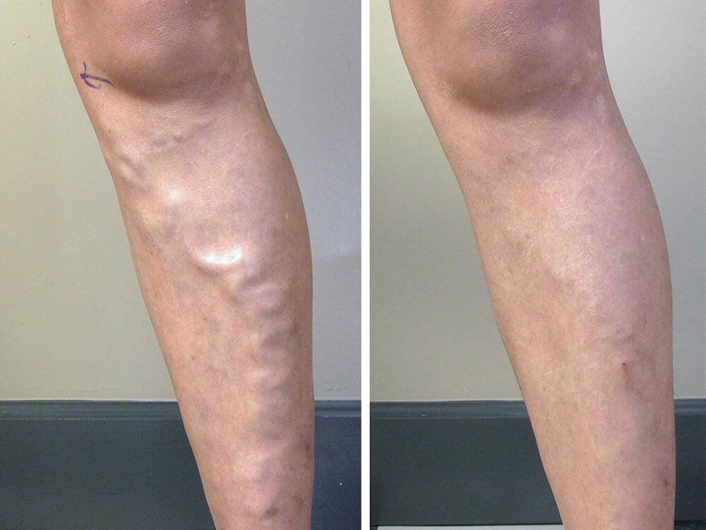 Sclerotherapy Laser Vein Removal Utah Valley Dermatology