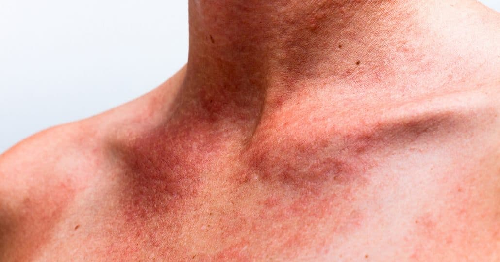 Actinic-Keratosis Treatment Utah County
