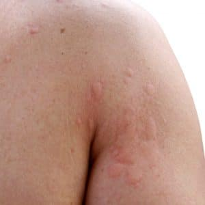 hives treatment lehi