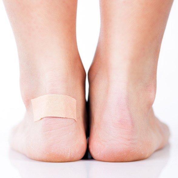 blisters treatment