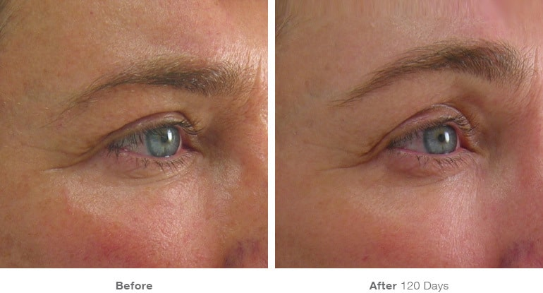 brow lift lehi utah