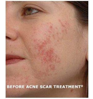 Acne Scarring Treatment & Removal in Utah   Utah Valley