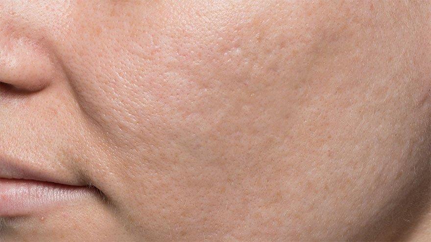 bellafill acne scars