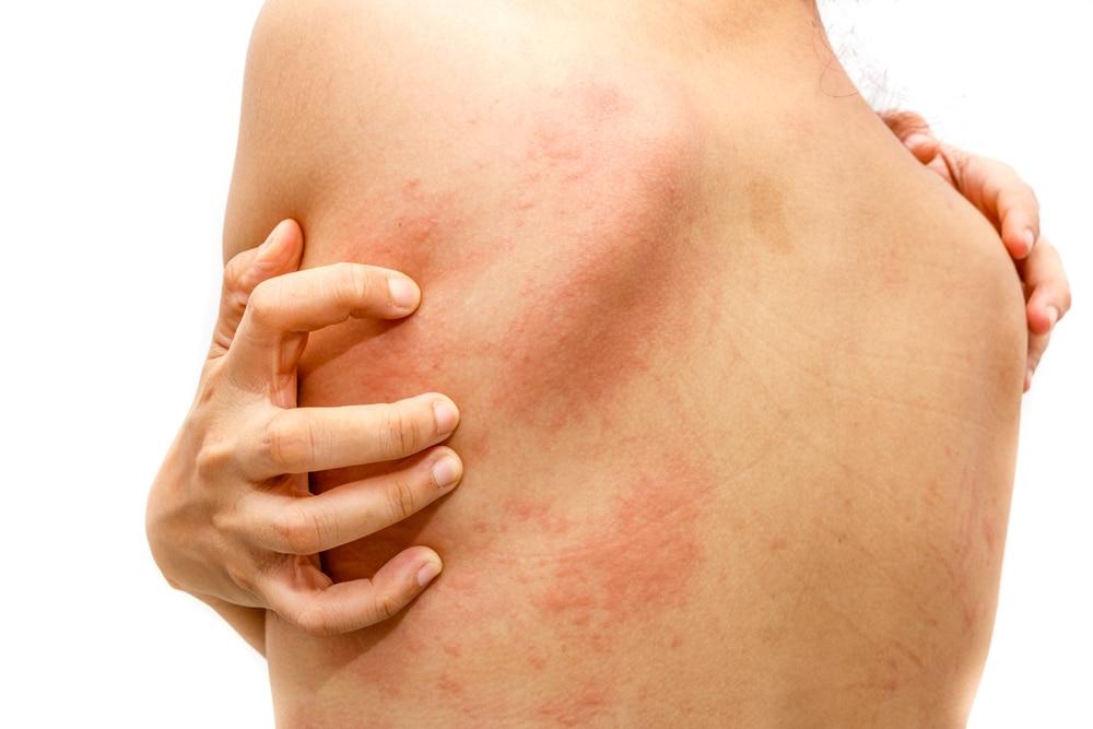Acute Urticaria (Hives) | Utah Valley Dermatology