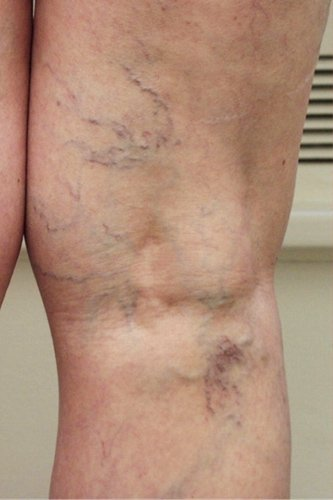 spider veins blue