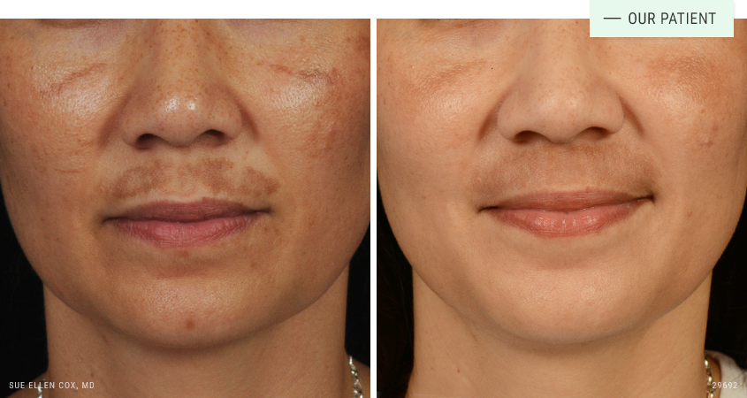 Cosmetic Dermatology Gallery Before And After Images