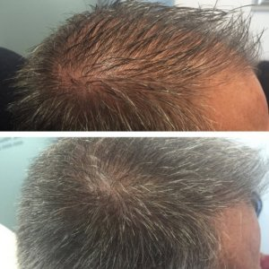 Hair Loss Therapy for Men in Utah - PRP Therapy by Utah Valley Dermatology