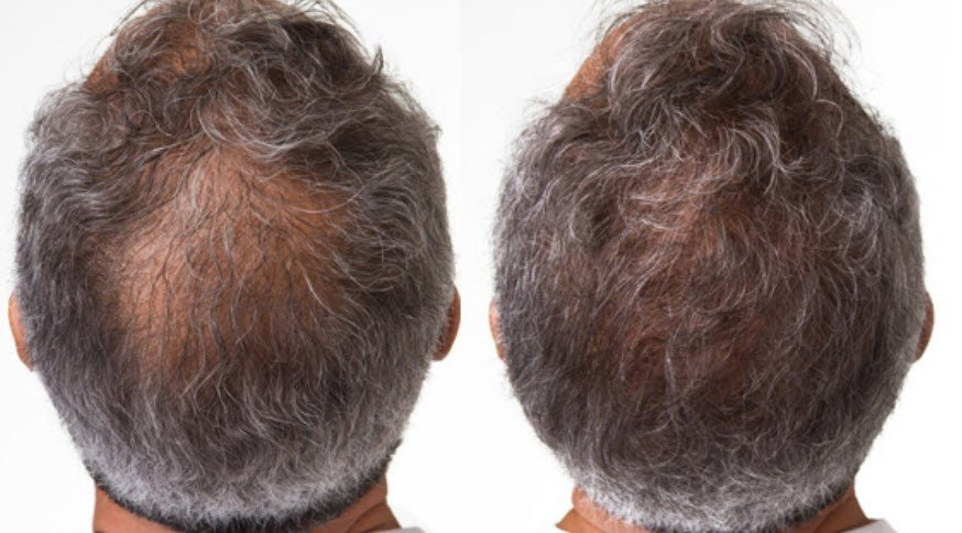 Hair Loss Treatment Results for Men in Utah - PRP Therapy by Utah Valley Dermatology