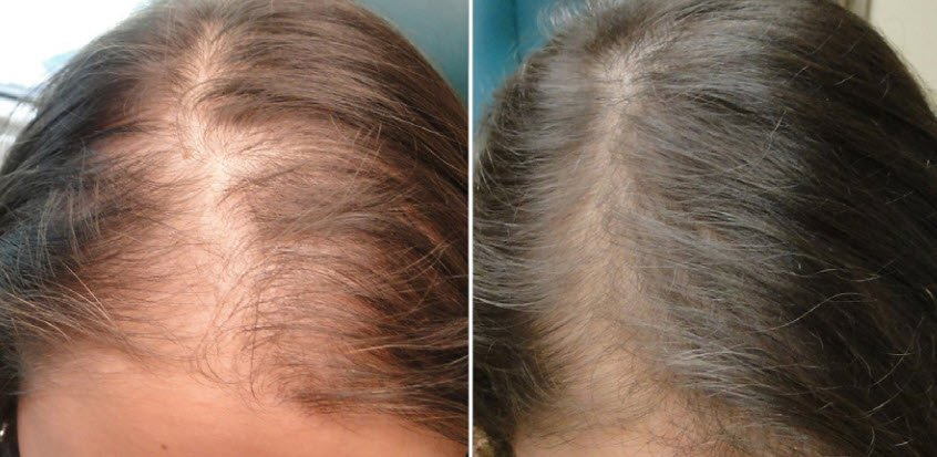 Hair Loss Treatment for Women in Utah - PRP Therapy by Utah Valley Dermatology