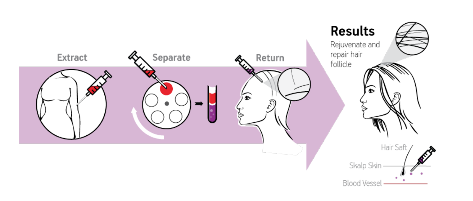 How Does PRP Therapy for Hair Loss Work - Utah Valley Dermatology
