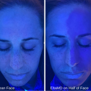 EltaMD on Half of Face Comparison - Skin Cancer Awareness Month