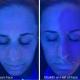 EltaMD on Half of Face Comparison - Skin Cancer Awareness Month
