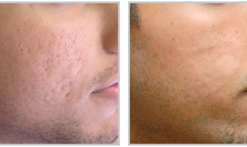 Acne-Scars-Image-PRP Skin Treatment for Face in Utah - Before and After
