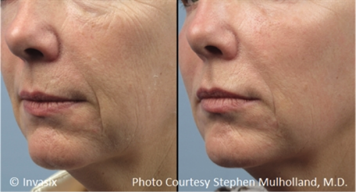 PRP Injections and Treatments for the Face in Utah