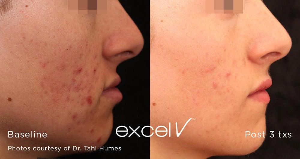 1064 acne 2