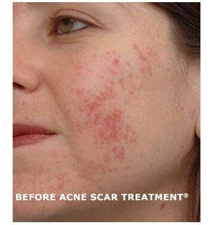 acne scar treatment 2a