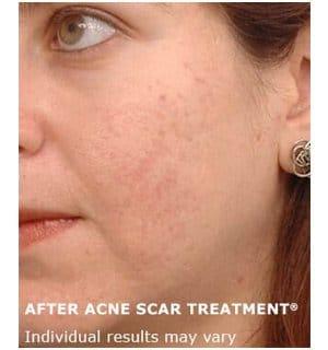acne scar treatment 2b