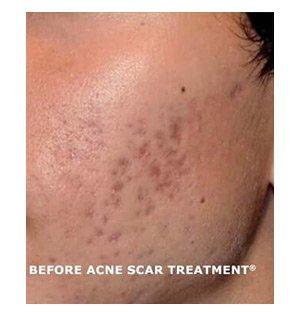 acne scar treatment ba1b