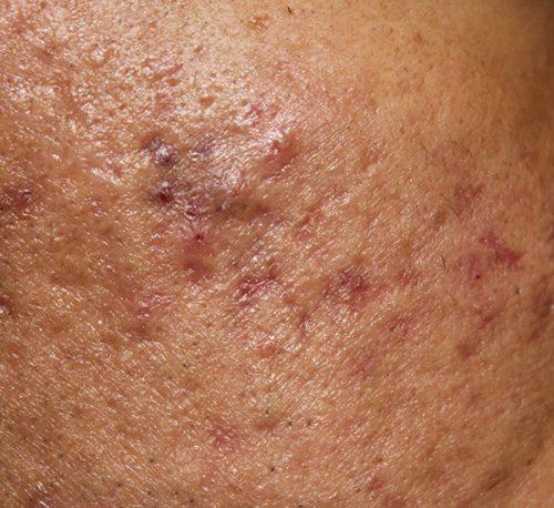 acne scars atrophic 1 e1505928549181