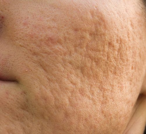 acne scars hypertrophic e1505928529952