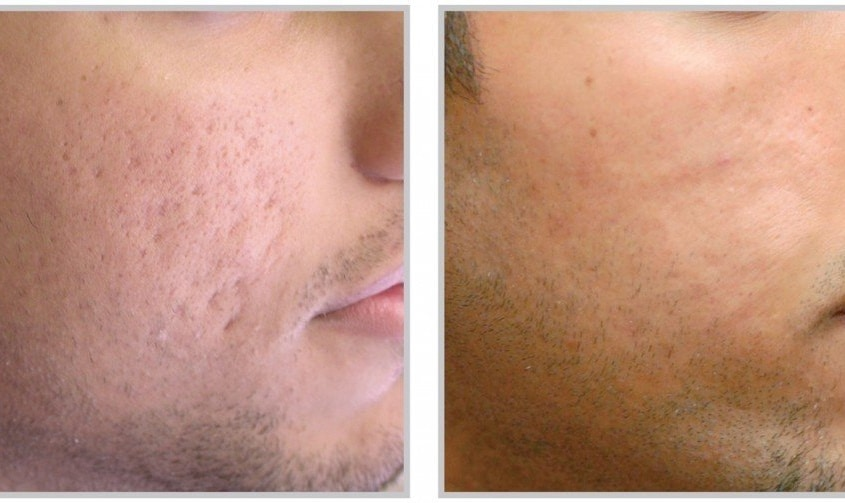 acne scars image prp skin treatment for face in utah before and after 845x503