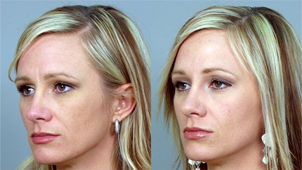 botox before and after 3opt