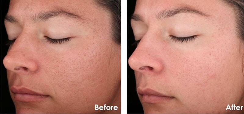 chemical peel before and after 2