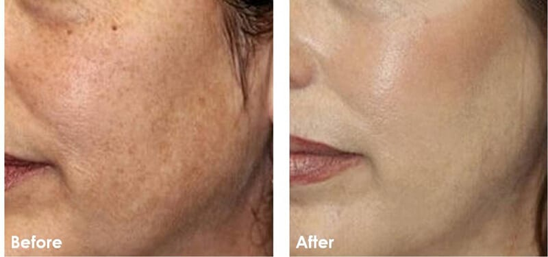 chemical peel before and after 3