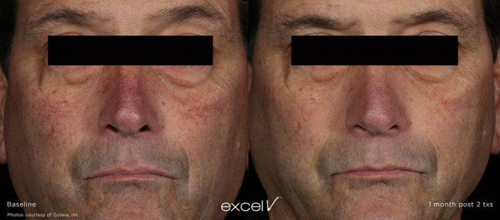 excel v 532 vascular 2 705x310