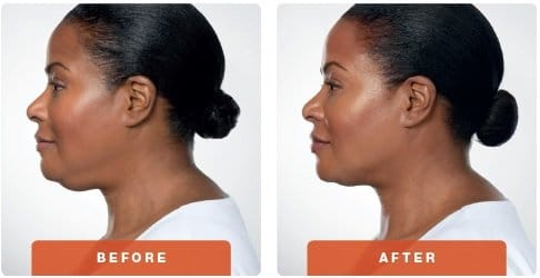 kybella before after 3