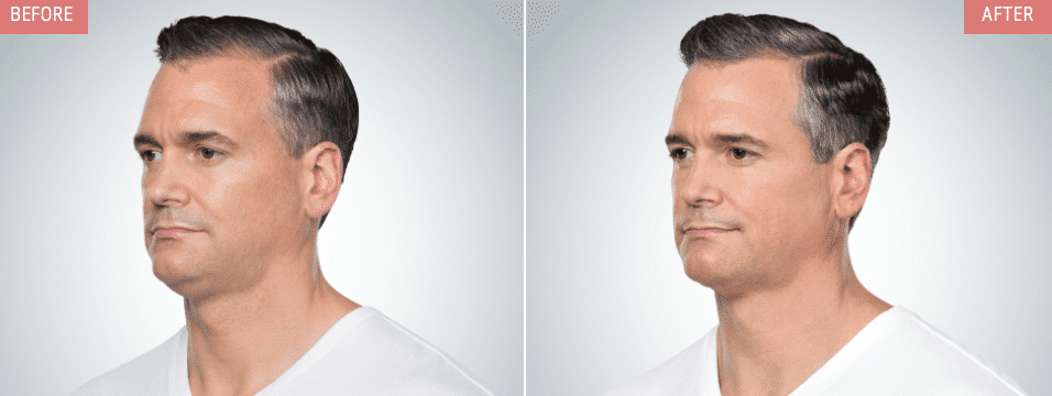 kybella male injections treatments nyc before after 01