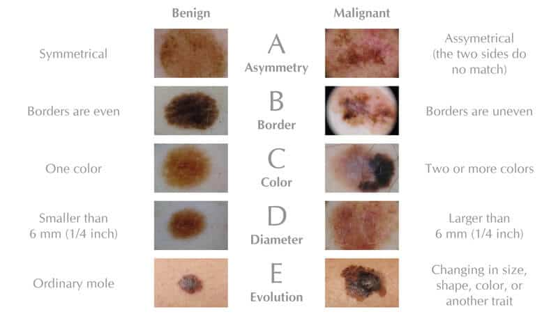 melanoma symptoms