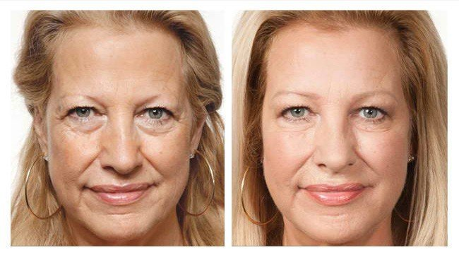 prp undereyes before and after image prp treatment in utah