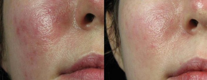 rosacea redness vbeam pulse dye laser face veins 705x275