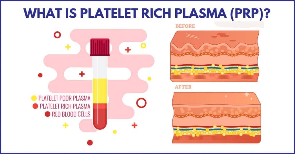what is platelet rich plasma prp 1030x539