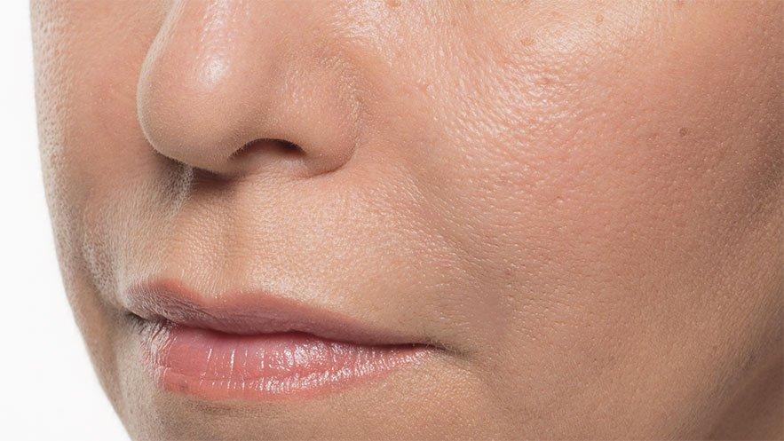 wrinkle after bellafi