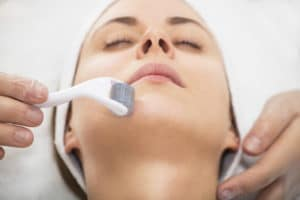 an image of a woman getting microneedling done on her face. Shes wearing a head wrap and her eyes are closed.