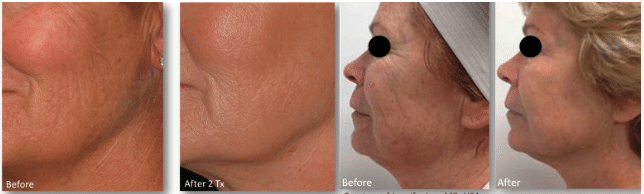 Before and after images of a woman who underwent a microneedling treatment.