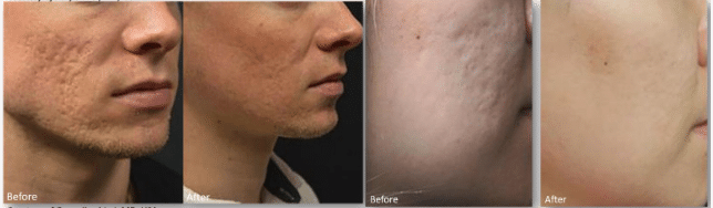Before and after images of a young man and woman who underwent microneedling treatment.