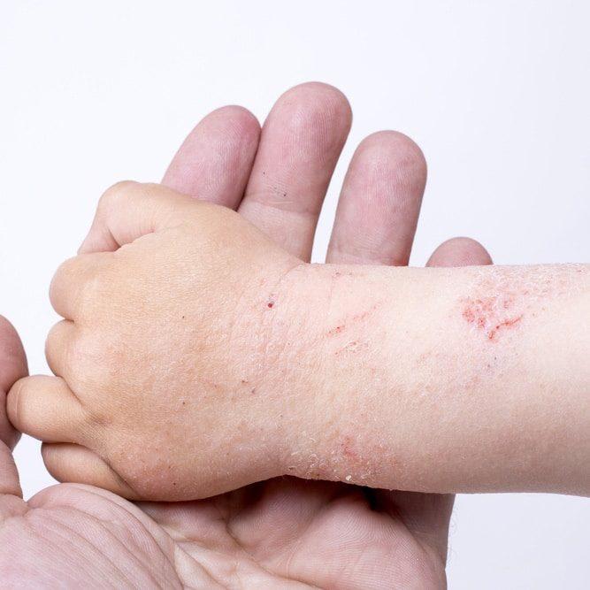 eczema sq