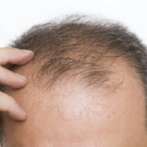 hair loss treatment for men in utah prp therapy by utah valley dermatology