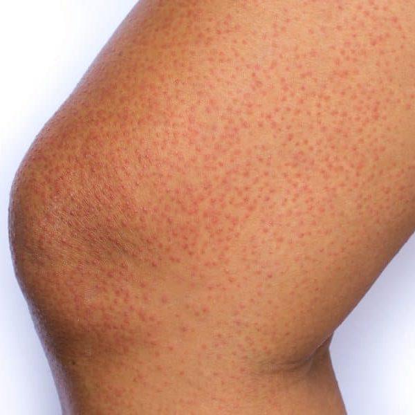 rash on skin e1511383754413