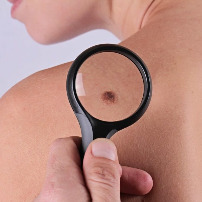 Skin Tags Utah Valley Dermatology